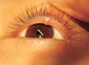 Простуда на глазу