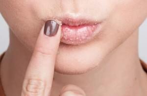 Компресс для губ