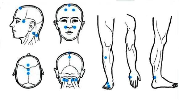 Боли после точечного массажа