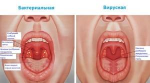 Что делать, если боль в горле отдает в ухо при глотании