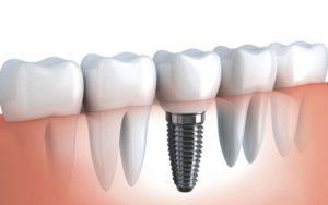 Как выбрать зубные импланты, обзор системы Nobel Replace